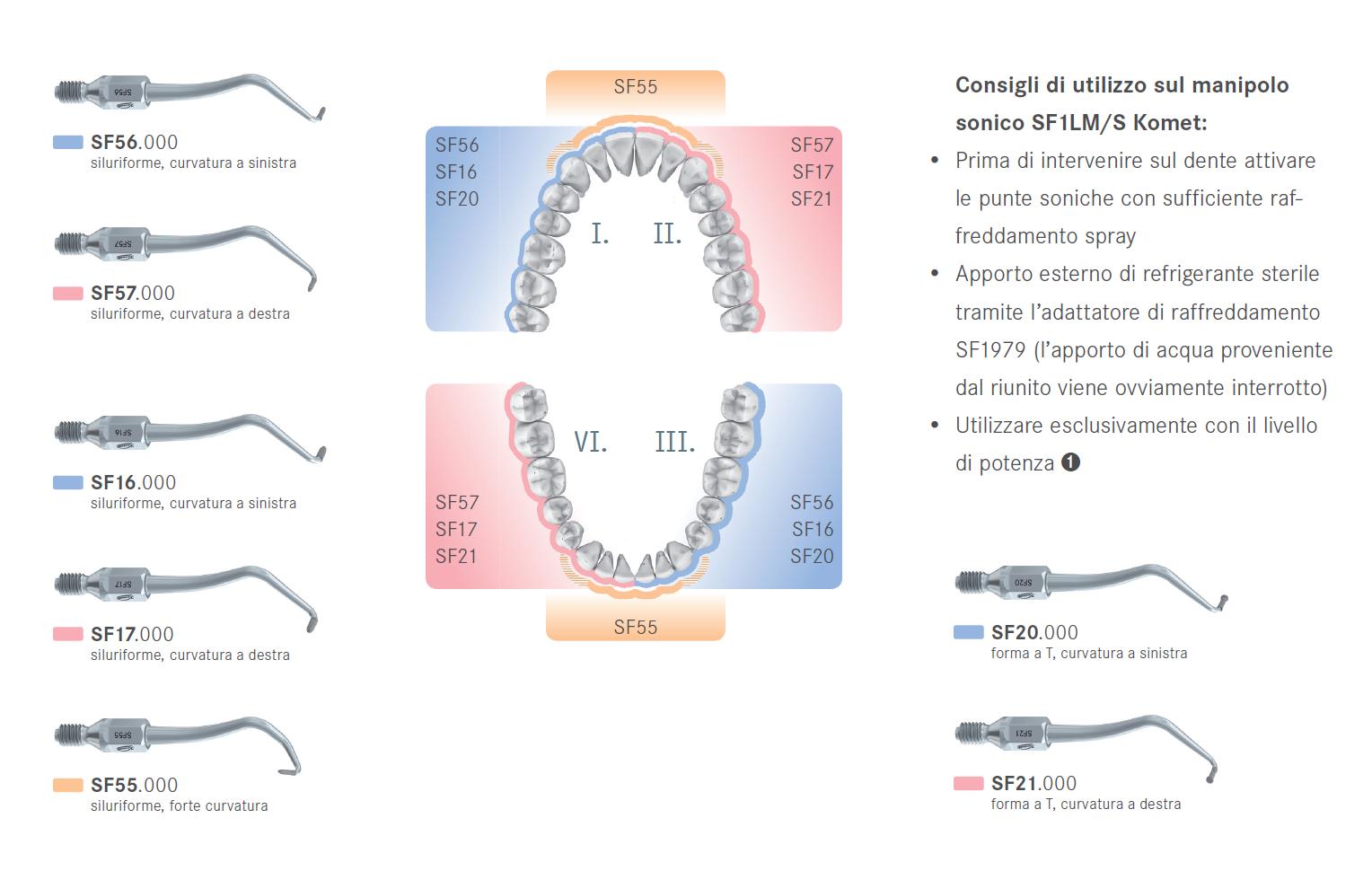 Punte soniche per endodonzia retrogada