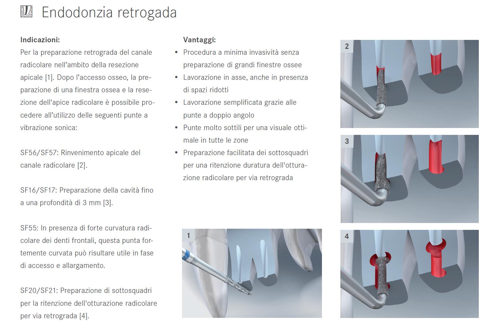 Punte soniche per endodonzia retrograda