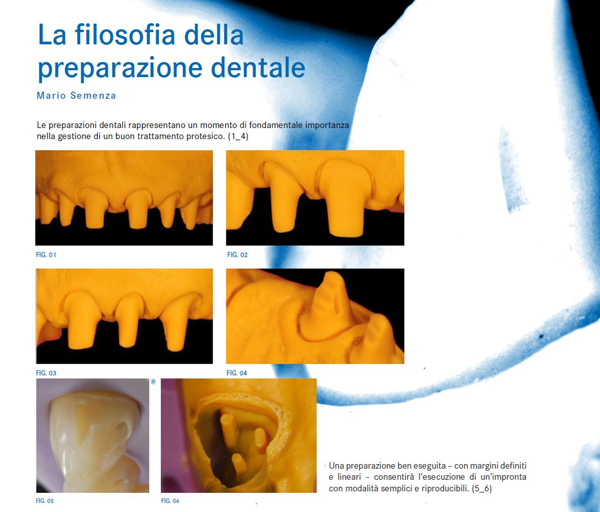 Dr Mario Semenza Preparazione protesi