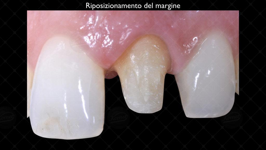 Fig12-R Figura Caso clinico Ugo Maccà