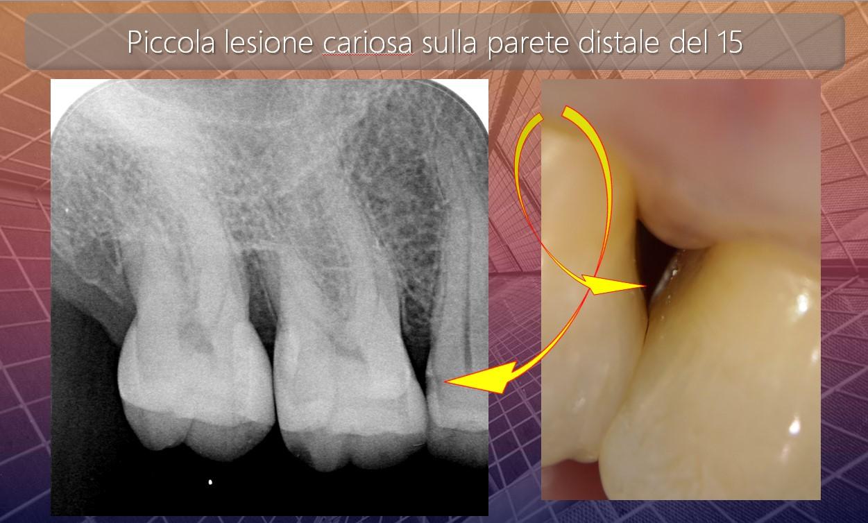 Caso clinico del Dr Mauro Libertucci