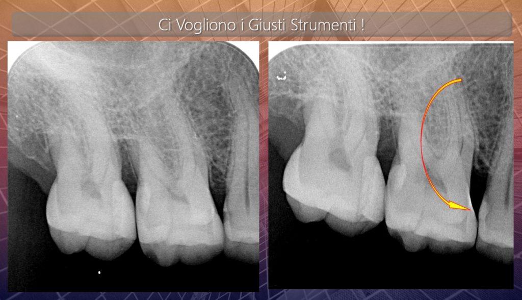 Caso clinico Dr Mauro Libertucci foto finale