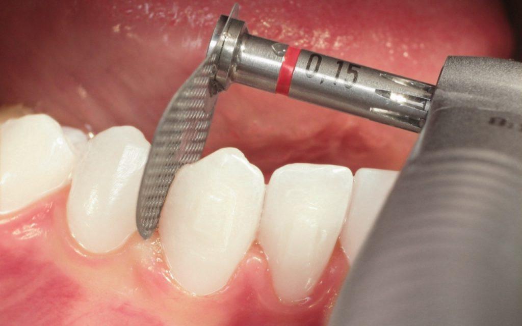 Dischi oscillanti Komet per ortodonzia